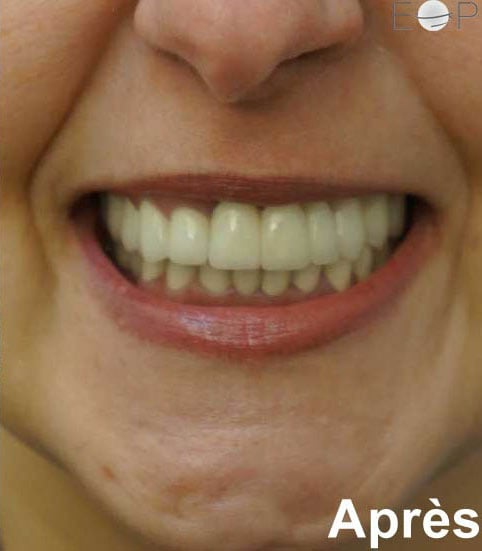 apres-couronne-sur-implant