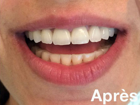 R sultat pose de couronnes dentaires en zircone - Retour de couche apres accouchement ...