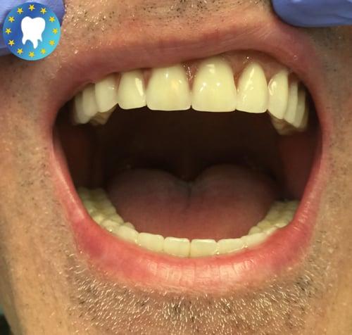 Résultat soins dentaires