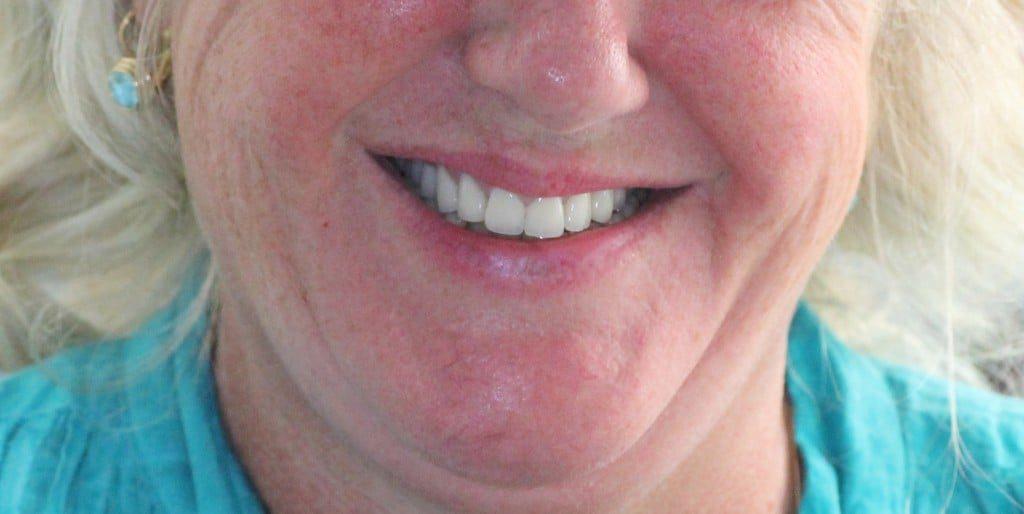 Cas soins dentaires avant après