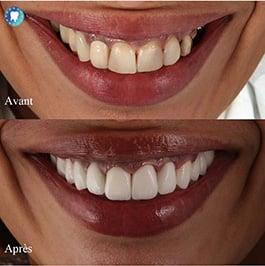 Avant après dentaires
