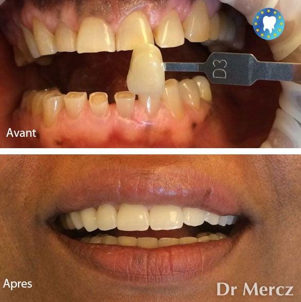 Soins dentaires facettes