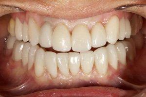 cas patient sourire