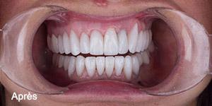 Résultat soins dentaires facettes