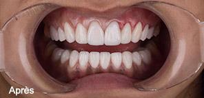 Résultat soins dentaires Izmir
