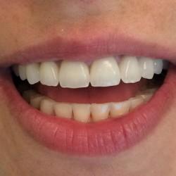 Avant après couronnes dentaires en Zircone