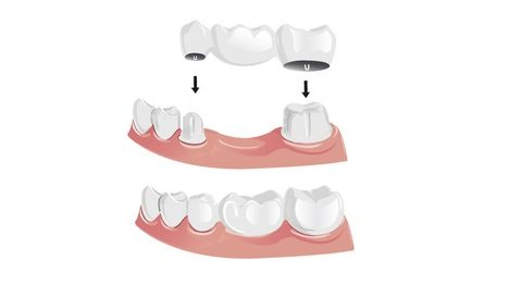 bridge dentaire prix soin dentaire