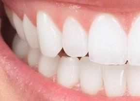 Couronne dentaire base de remboursement cpam