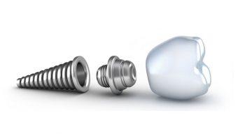 couronne dentaire prix implant