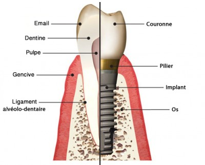 schéma implant dentaire